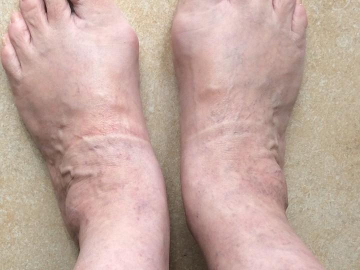 Maundy Thursday 24 March 2016 – feet